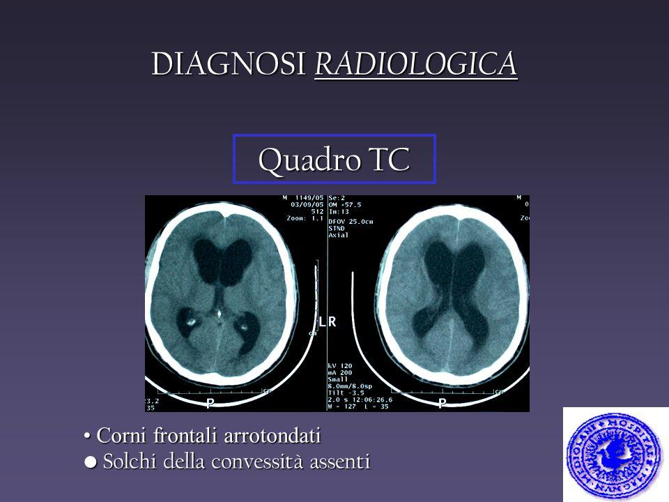 DIAGNOSI RADIOLOGICA Quadro TC Corni frontali arrotondati