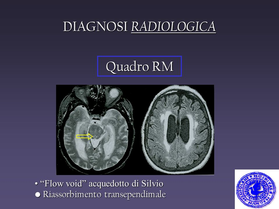 DIAGNOSI RADIOLOGICA Quadro RM Flow void acquedotto di Silvio
