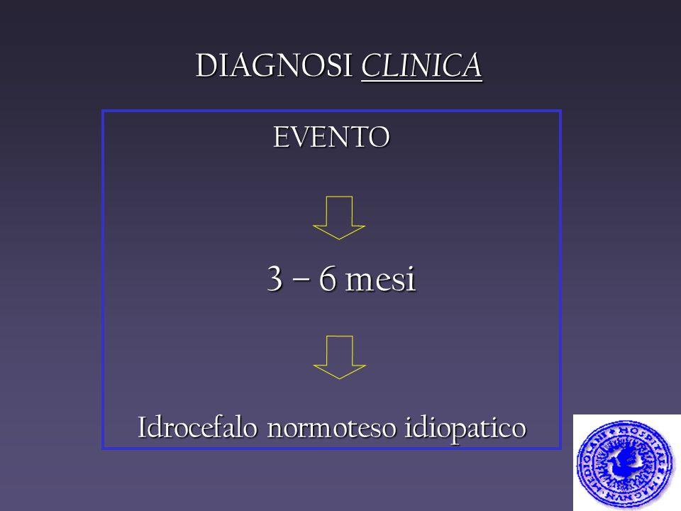 Idrocefalo normoteso idiopatico