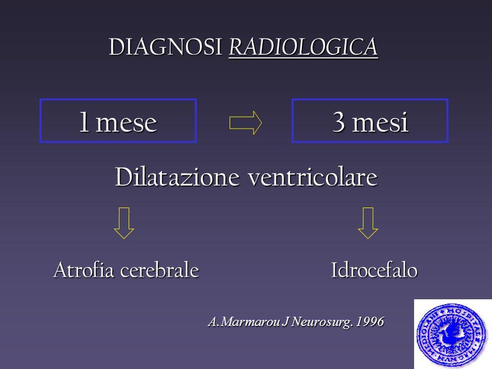 Dilatazione ventricolare
