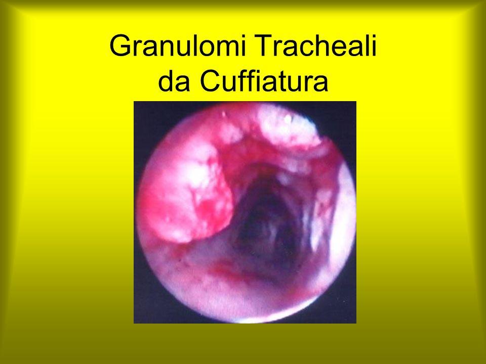 Granulomi Tracheali da Cuffiatura