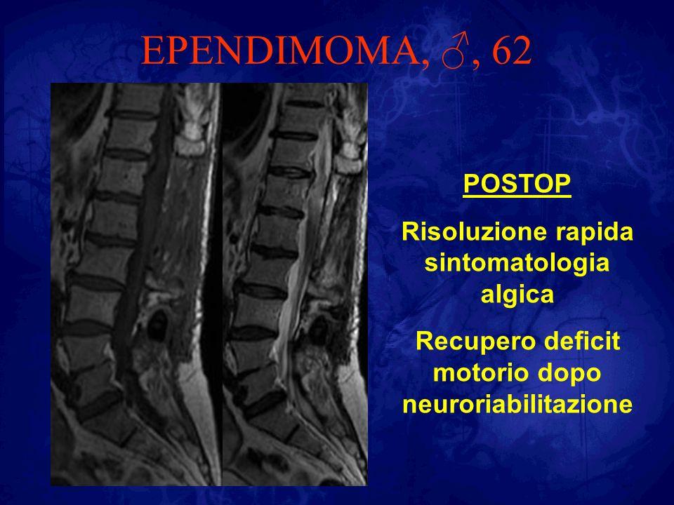 EPENDIMOMA, ♂, 62 POSTOP Risoluzione rapida sintomatologia algica