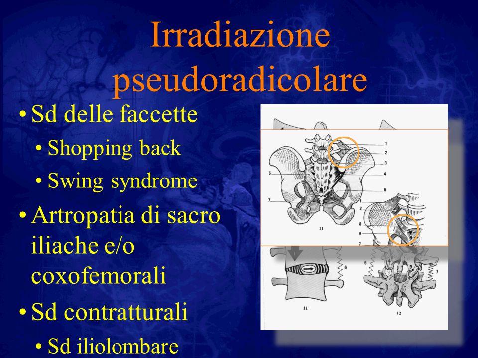 Irradiazione pseudoradicolare