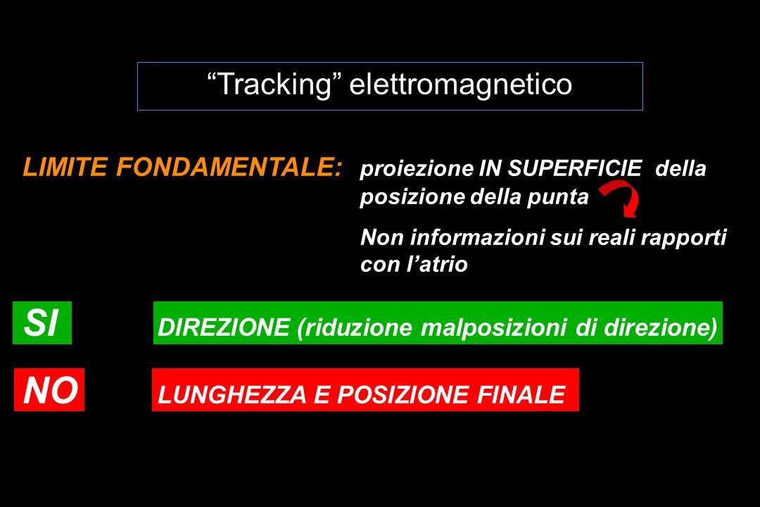Tracking elettromagnetico