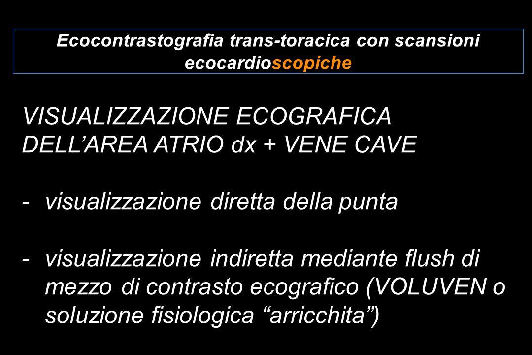 Ecocontrastografia trans-toracica con scansioni ecocardioscopiche