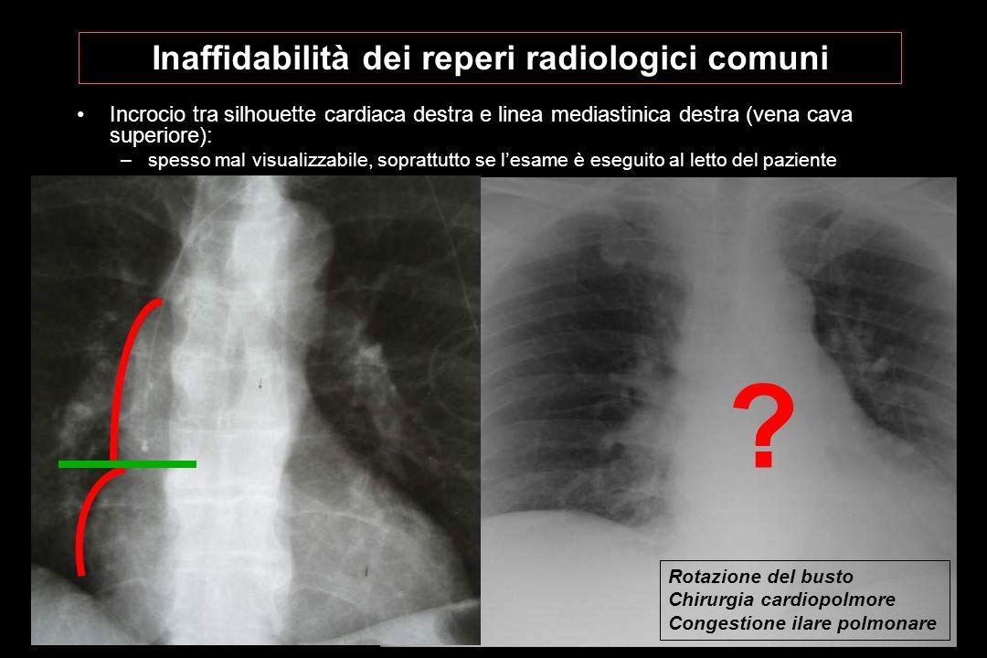 Inaffidabilità dei reperi radiologici comuni