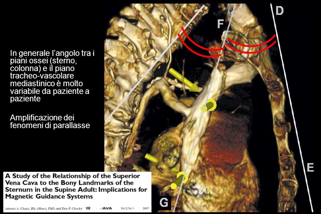 In generale l'angolo tra i piani ossei (sterno, colonna) e il piano tracheo-vascolare mediastinico è molto variabile da paziente a paziente