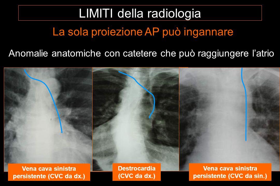 Anomalie anatomiche con catetere che può raggiungere l'atrio