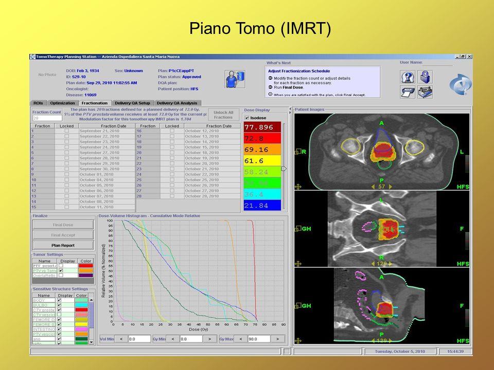 Piano Tomo (IMRT)