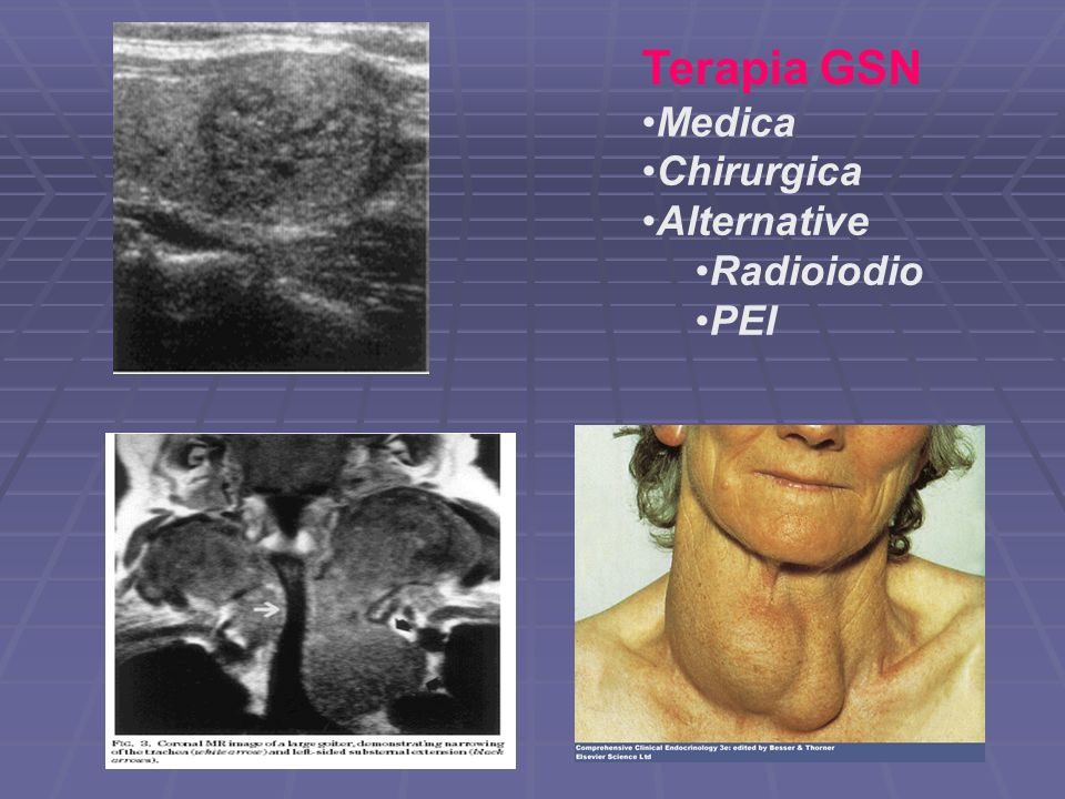 Terapia GSN Medica Chirurgica Alternative Radioiodio PEI