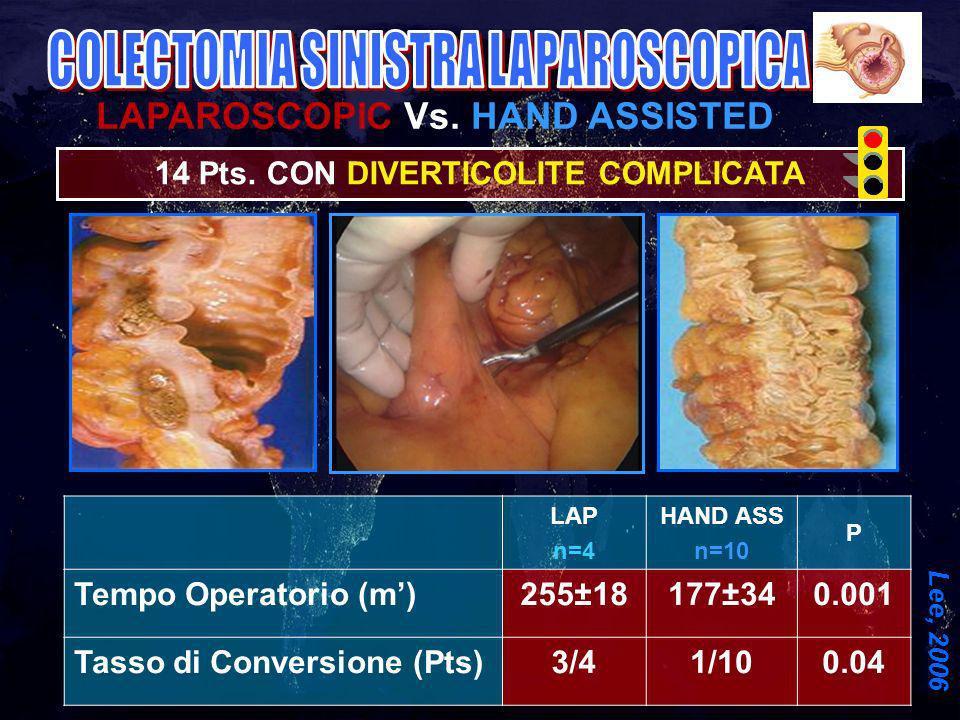 COLECTOMIA SINISTRA LAPAROSCOPICA
