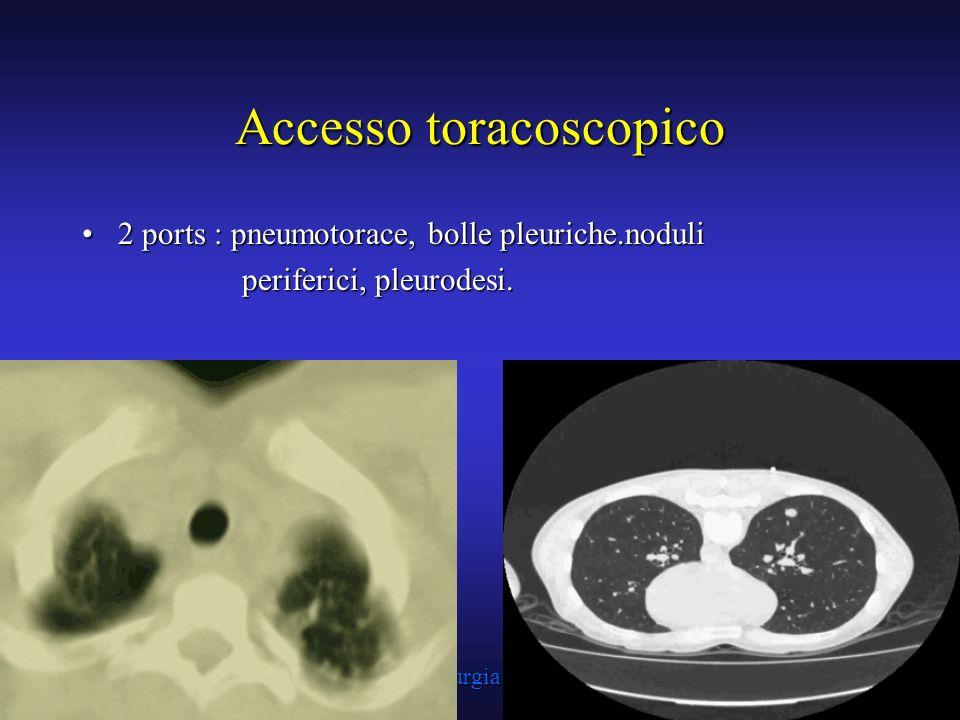 Accesso toracoscopico