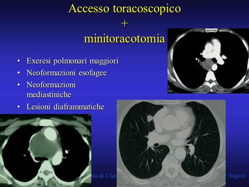 Accesso toracoscopico + minitoracotomia