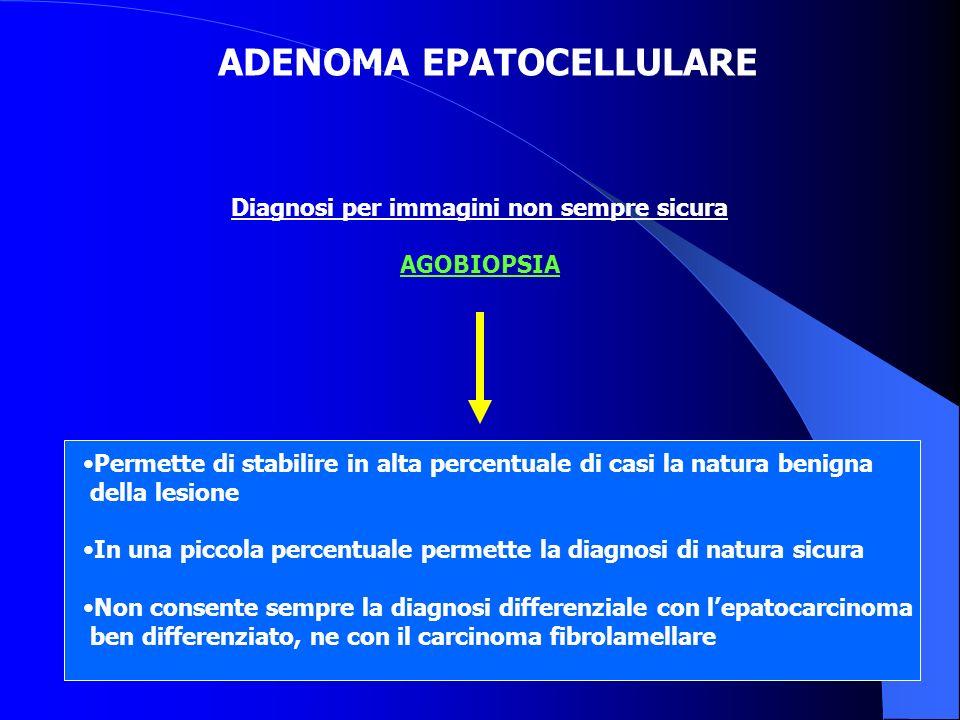 ADENOMA EPATOCELLULARE Diagnosi per immagini non sempre sicura