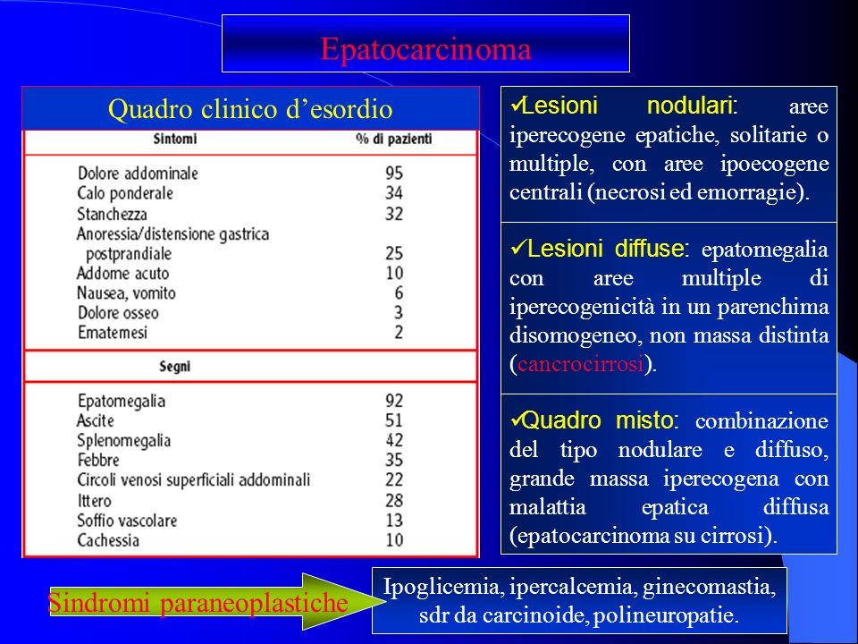 Epatocarcinoma Quadro clinico d'esordio Sindromi paraneoplastiche
