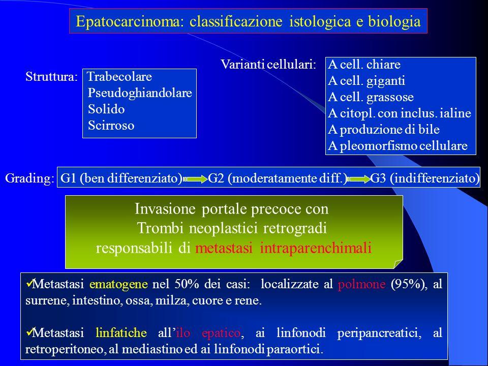 Epatocarcinoma: classificazione istologica e biologia