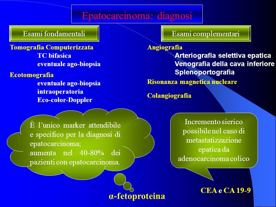Epatocarcinoma: diagnosi