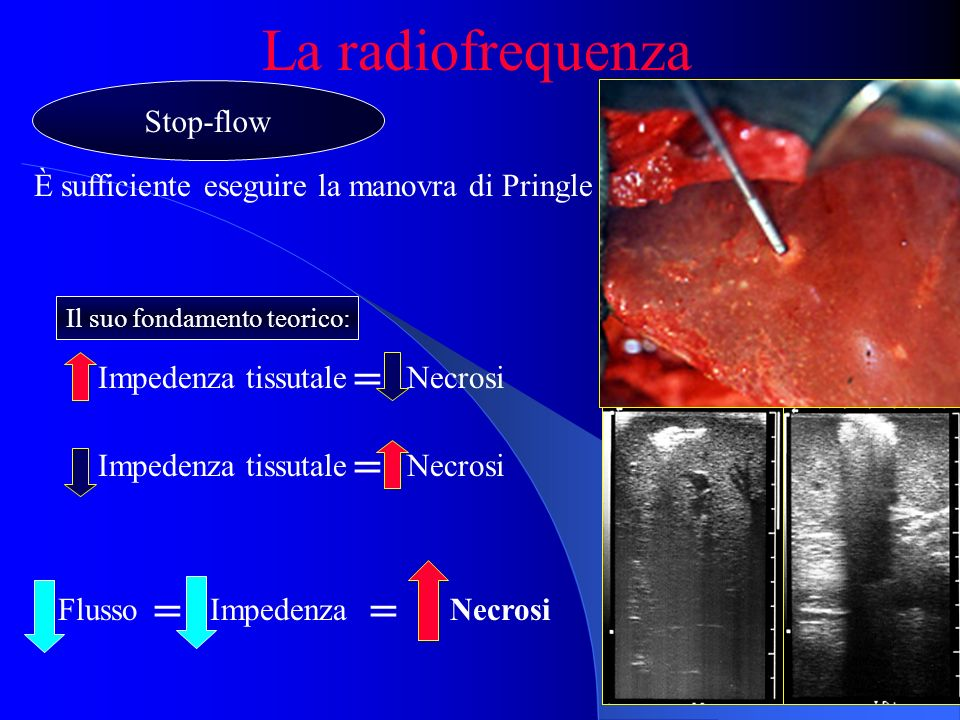 La radiofrequenza = = = = Stop-flow