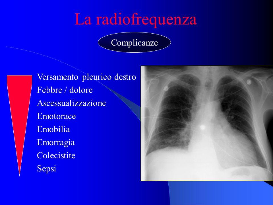 La radiofrequenza Complicanze Versamento pleurico destro