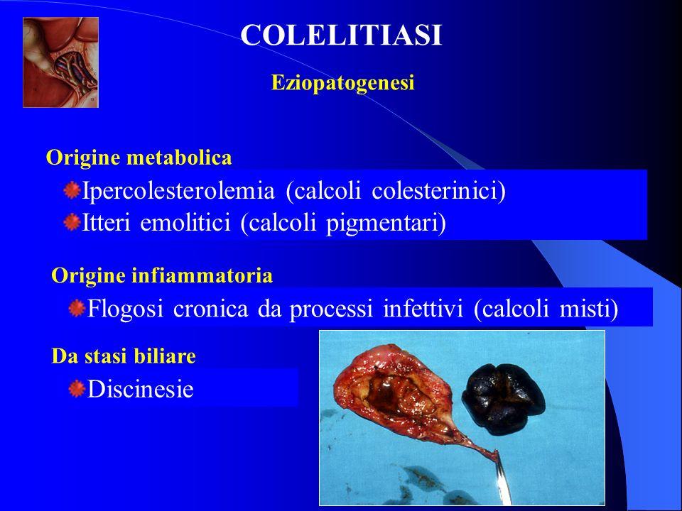 COLELITIASI Ipercolesterolemia (calcoli colesterinici)