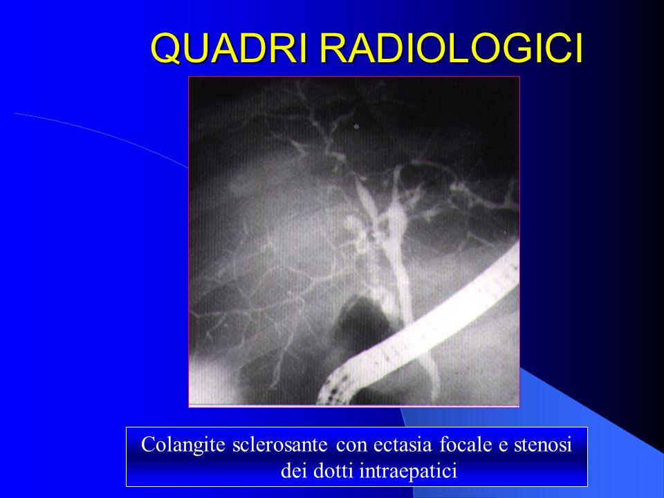 QUADRI RADIOLOGICI Colangite sclerosante con ectasia focale e stenosi dei dotti intraepatici