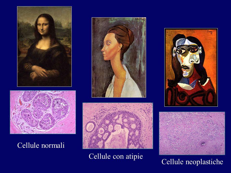 Cellule normali Cellule con atipie Cellule neoplastiche