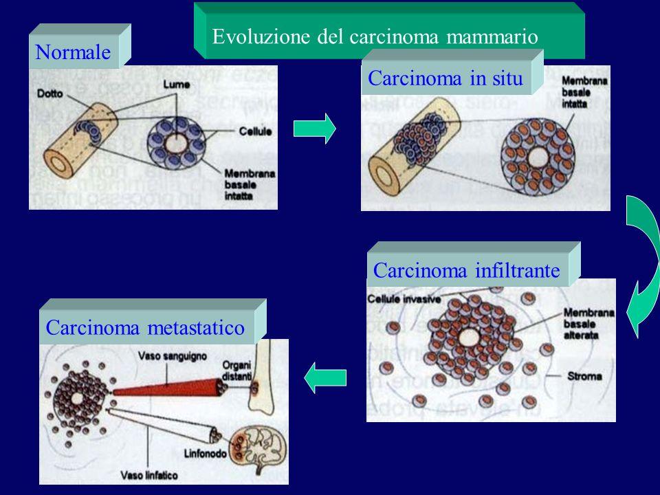 Evoluzione del carcinoma mammario