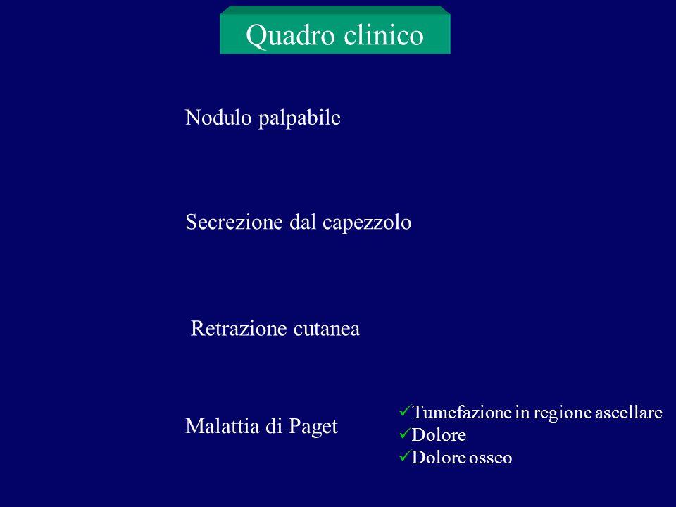 Quadro clinico Nodulo palpabile Secrezione dal capezzolo