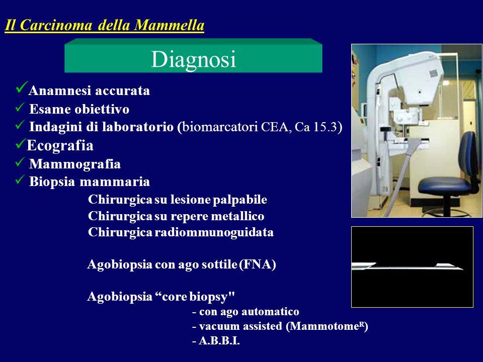Diagnosi Anamnesi accurata Il Carcinoma della Mammella Ecografia