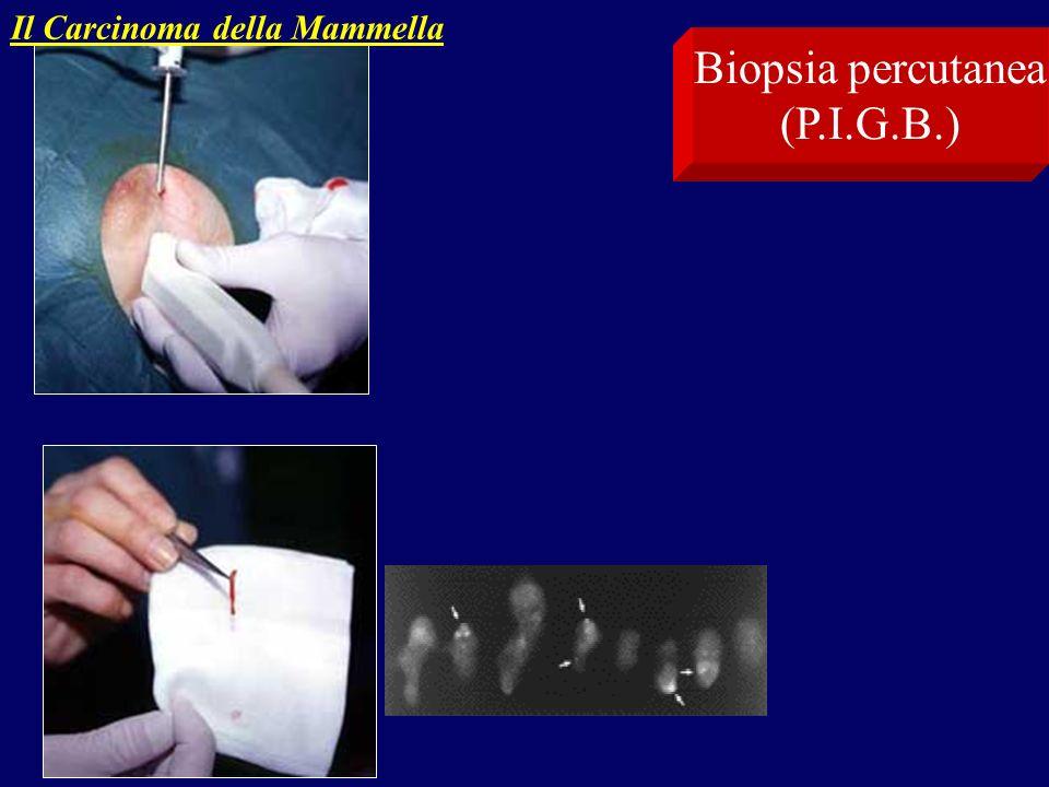 Biopsia percutanea (P.I.G.B.) Il Carcinoma della Mammella