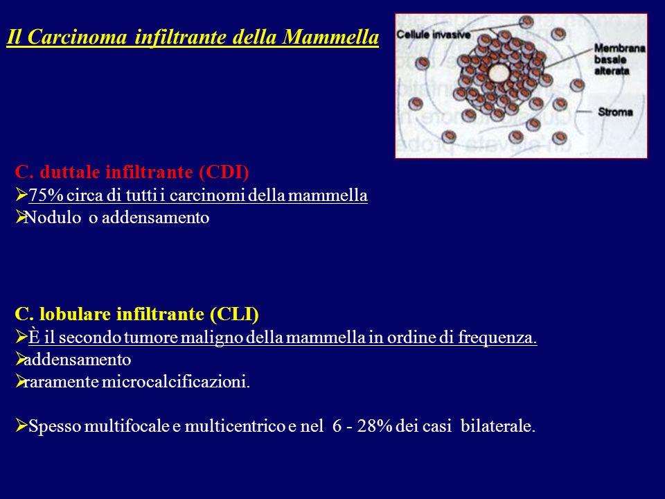 Il Carcinoma infiltrante della Mammella