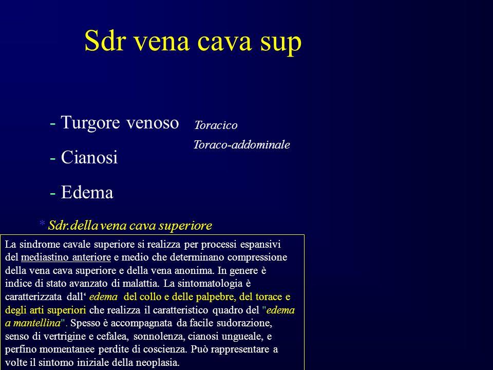 Sdr vena cava sup - Turgore venoso - Cianosi - Edema