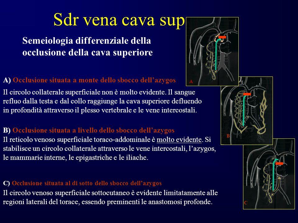 Sdr vena cava sup Semeiologia differenziale della