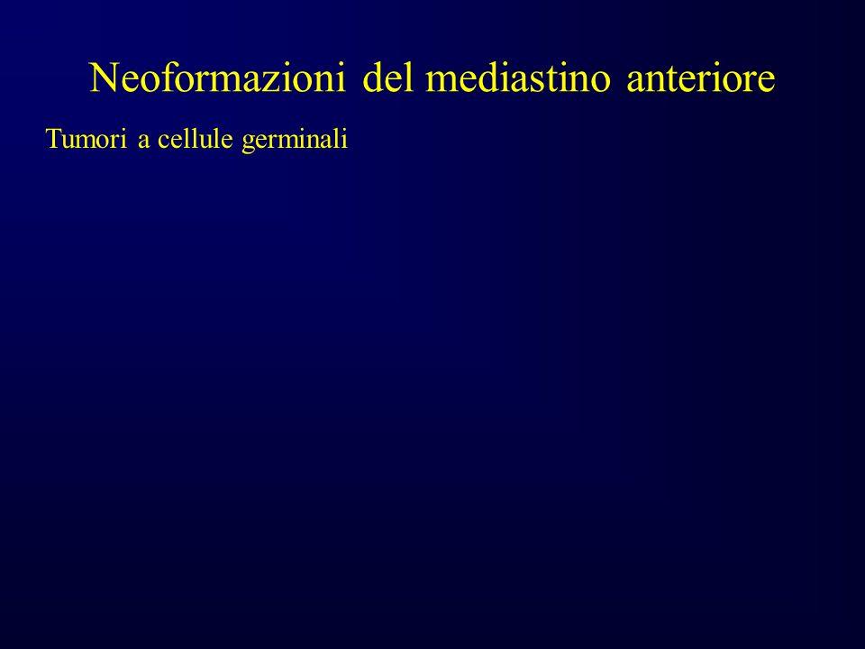 Neoformazioni del mediastino anteriore