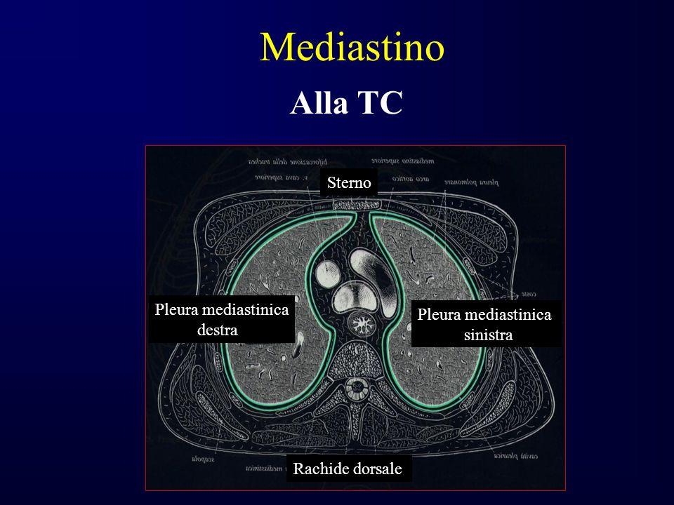 Mediastino Alla TC Sterno Sterno Pleura mediastinica