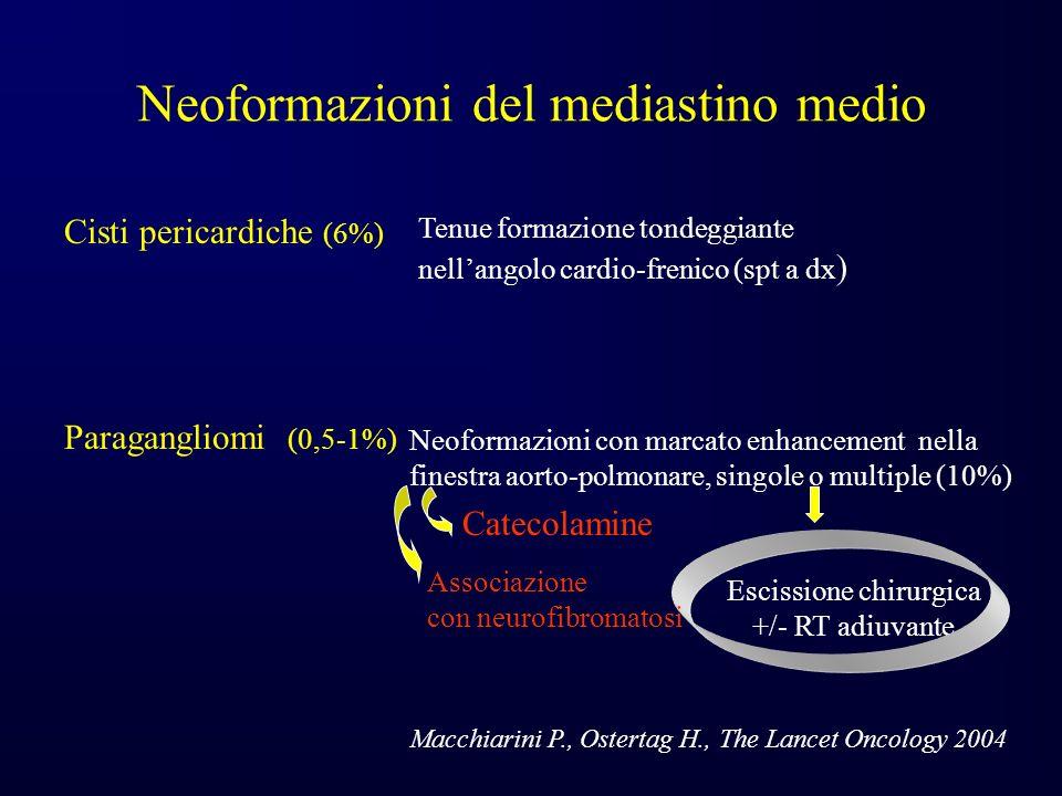 Neoformazioni del mediastino medio