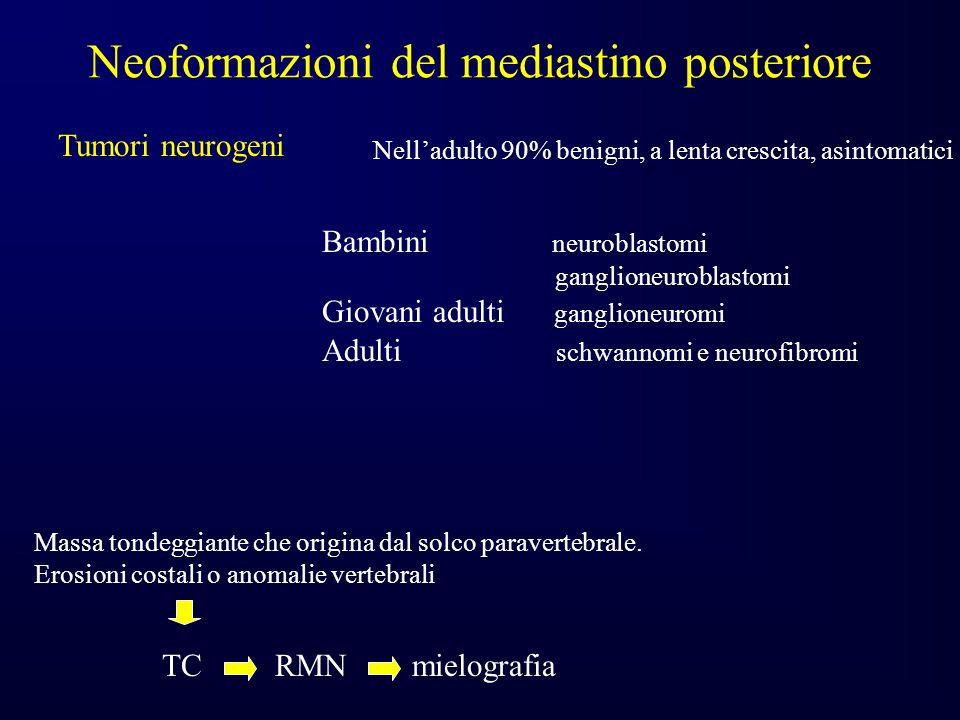Neoformazioni del mediastino posteriore