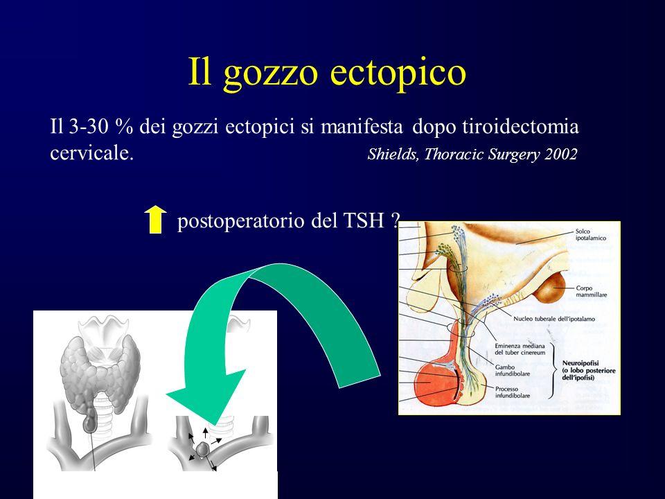 Il gozzo ectopico Il 3-30 % dei gozzi ectopici si manifesta dopo tiroidectomia.