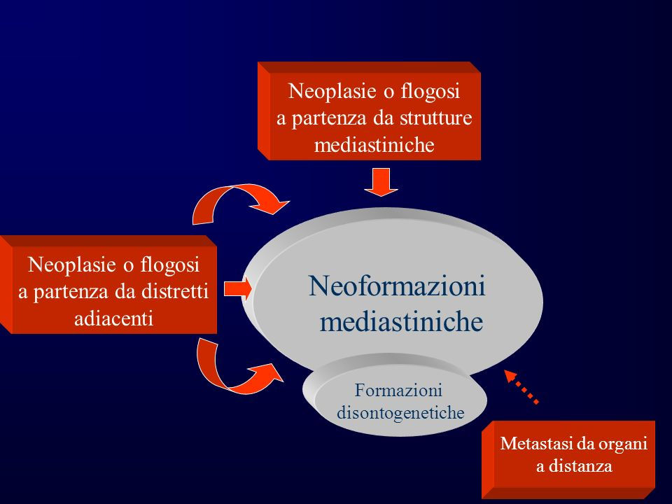 Neoformazioni mediastiniche Neoplasie o flogosi