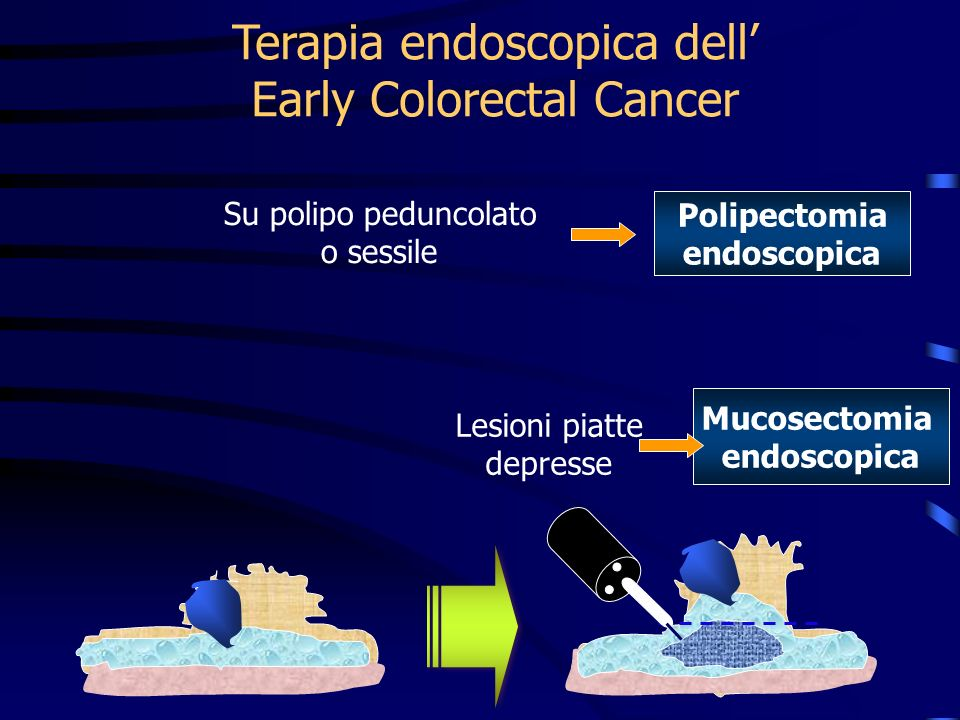 Terapia endoscopica dell' Early Colorectal Cancer