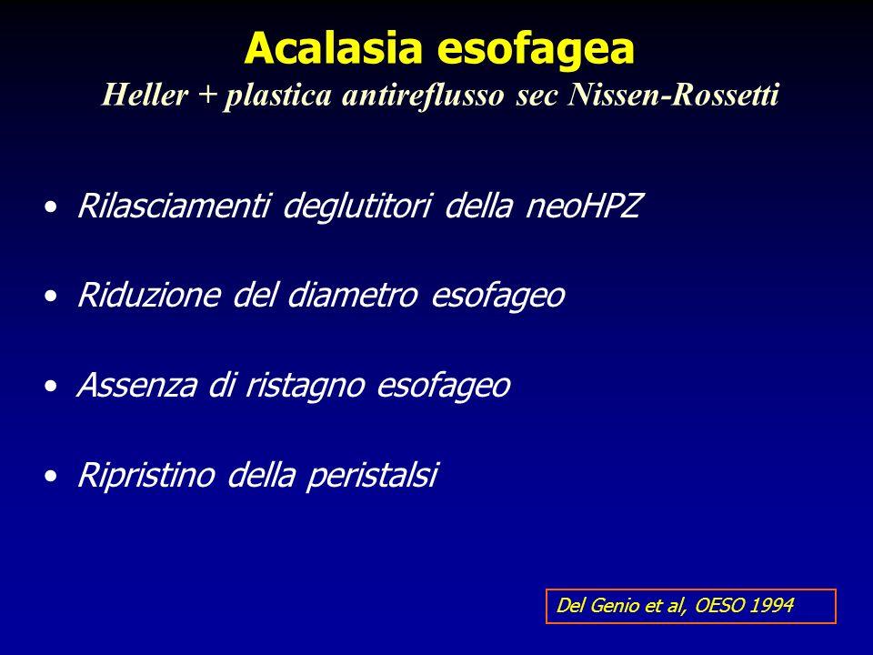 Acalasia esofagea Heller + plastica antireflusso sec Nissen-Rossetti