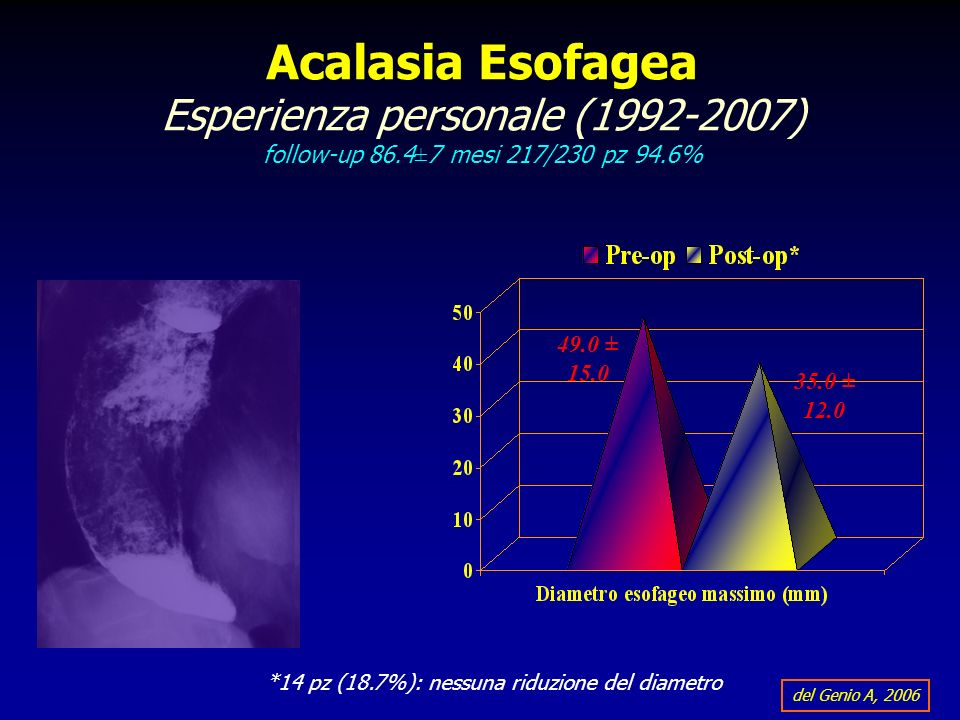 Acalasia Esofagea Esperienza personale (1992-2007) follow-up 86