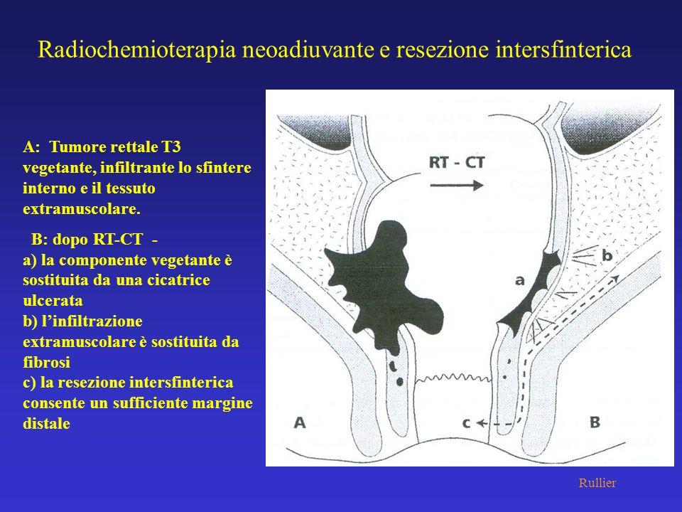 Radiochemioterapia neoadiuvante e resezione intersfinterica