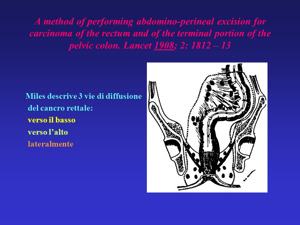 A method of performing abdomino-perineal excision for carcinoma of the rectum and of the terminal portion of the pelvic colon. Lancet 1908; 2: 1812 – 13