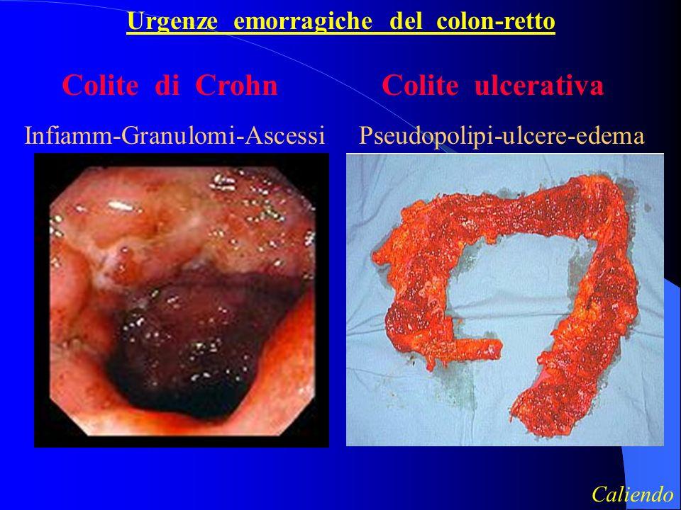 Urgenze emorragiche del colon-retto