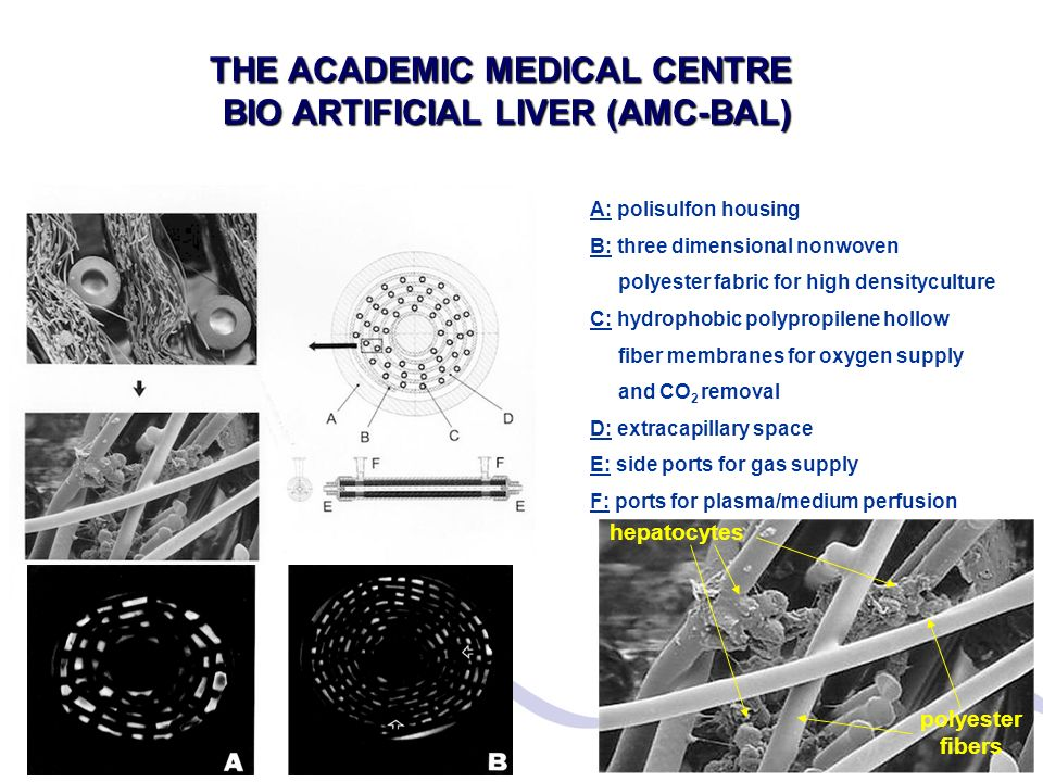 THE ACADEMIC MEDICAL CENTRE BIO ARTIFICIAL LIVER (AMC-BAL)