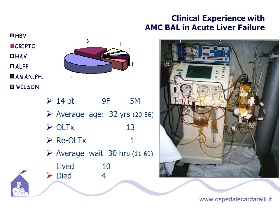 Clinical Experience with AMC BAL in Acute Liver Failure