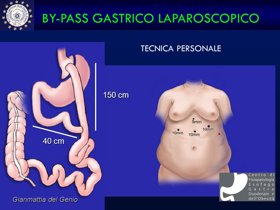 BY-PASS GASTRICO LAPAROSCOPICO