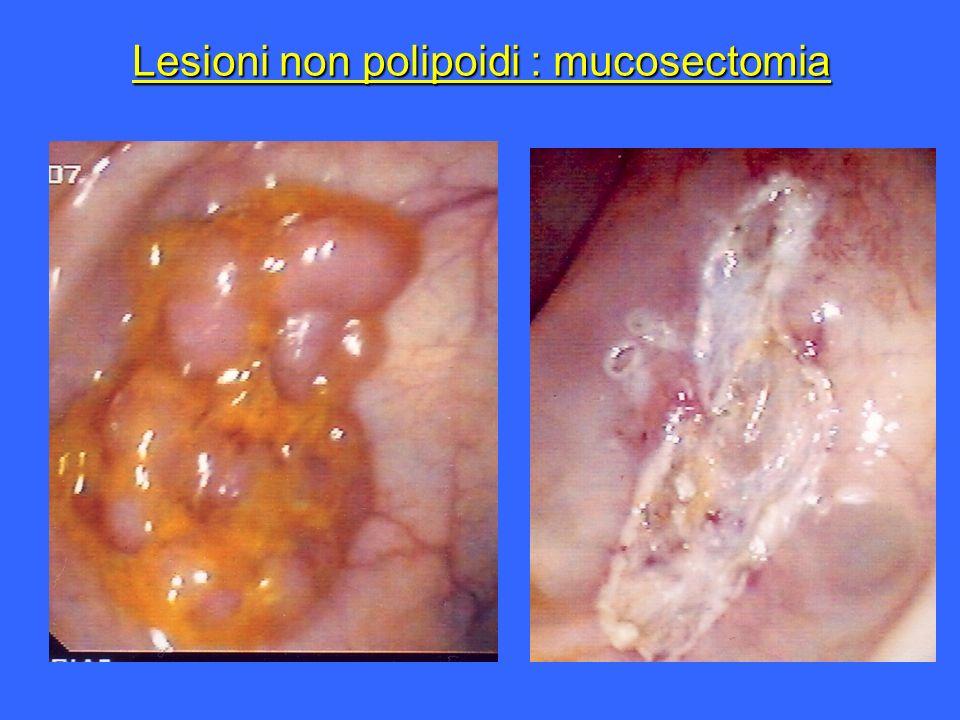 Lesioni non polipoidi : mucosectomia