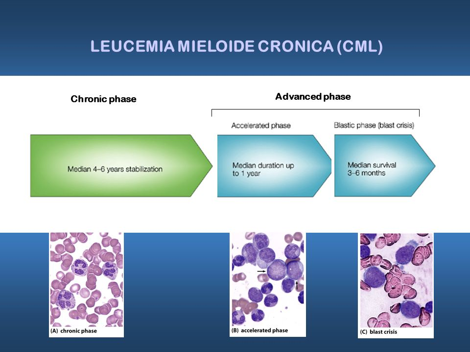 LEUCEMIA MIELOIDE CRONICA (CML)